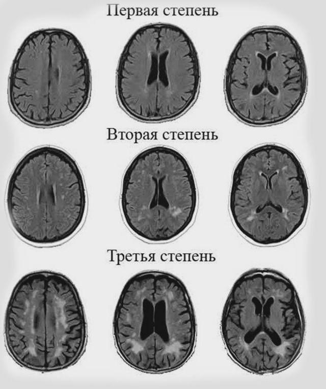 Лейкоареоз головного мозга: что это такое, изменения белого вещества, причины, лечение и профилактика, прогноз