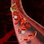 Тромбофлебит нижних конечностей: симптомы, фото и лечение верхних и глубоких вен, питание, отзывы