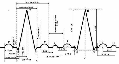 ЭКГ при инфаркте миокарда: признаки, расшифровка