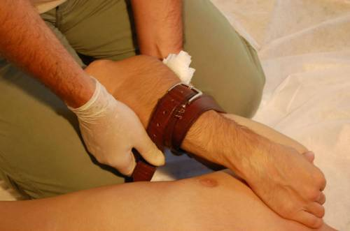 Геморрагический шок: причины возникновения, степени и стадии патологии, неотложная помощь