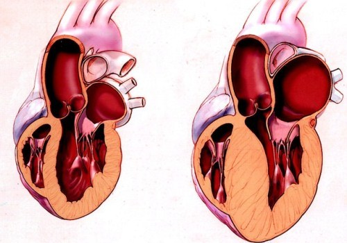 Последствия и риски гипертрофии левого желудочка