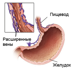 Варикозное расширение вен пищевода: причины, симптомы, диагностика и лечение