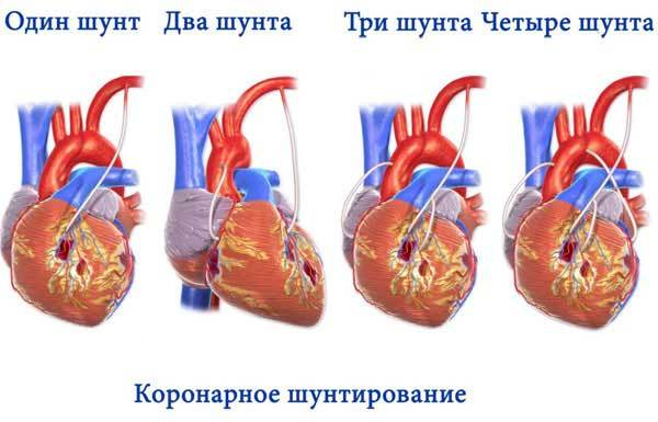 Что такое бычье сердце и чем оно опасно