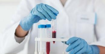 Гемоглобин: зачем нужен и где вырабатывается белок, что значит высокий и низкий уровень показателя в крови