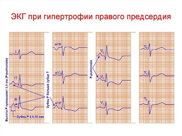 Гипертрофия правого предсердия: что это такое, причины, признаки на ЭК, диагностика и лечение