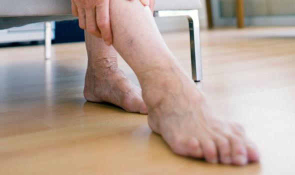 Тромб в ноге: первые признаки, причины, симптомы, лечение и последствия