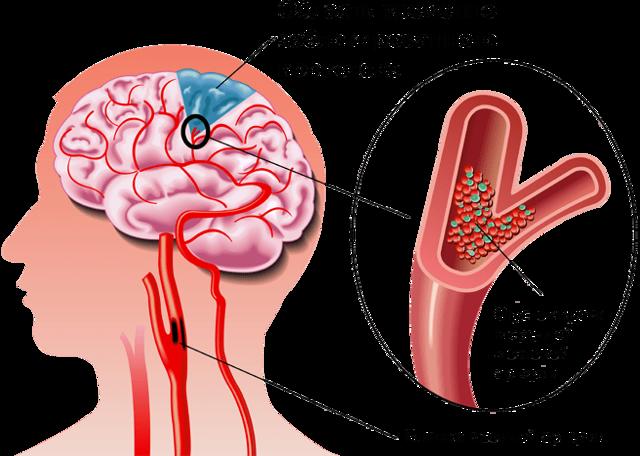 Нарушение мозгового кровообращения: симптомы и лечение, препараты и народные средства