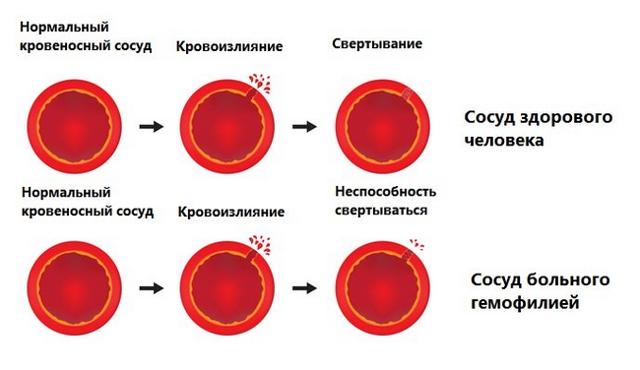 Плохая свертываемость крови (гипокоагуляция): что это такое, чем опасна, причины и лечение