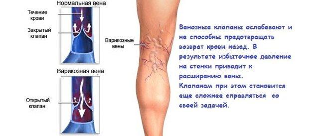 Вены на ногах выступают: причины, симптомы и лечение