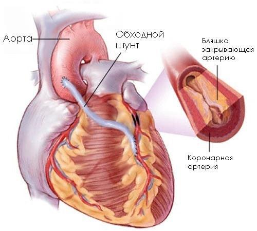 Коронарное шунтирование сосудов сердца: операция