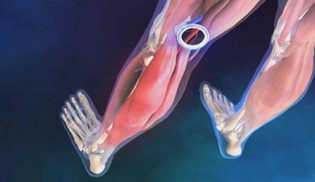 Непроходимость сосудов нижних конечностей: лечение, причины, симптомы окклюзии