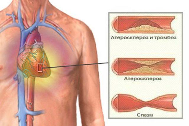 Стенокардия: симптомы и признаки, причины возникновения, первая помощь и лечение