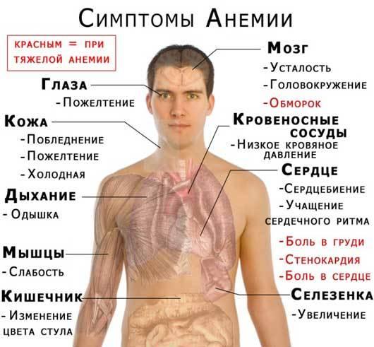 Какая бывает анемия и какие формы особенно опасны