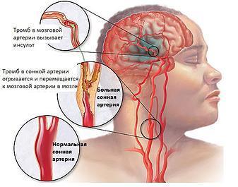 Сосудистый генез головного мозга: что это такое, причины, симптомы, лечение