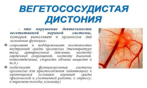 Код ВСД по МКБ-10: вегетососудистая дистония по смешанному типу, причины, лечение