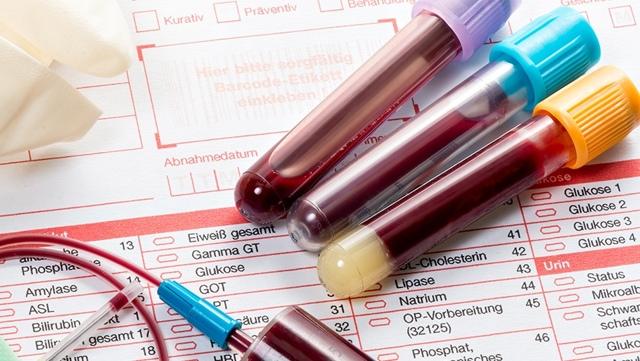 Общий анализ крови из пальца: что показывает, чем берут кровь из пальца, норма и расшифровка результатов, таблица