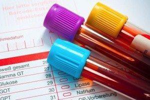 Тромбоцитопения при беременности: симптомы и лечение