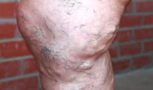 Варикозное расширение вен на ногах: симптомы и лечение у мужчин и женщин