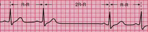 Миокардит: симптомы, диагностика и лечение воспаления сердечной мышцы