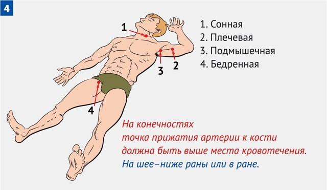 Первая помощь при венозном кровотечении: способы остановки, наложения повязки или жгута