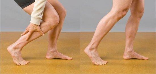 Облитерирующий атеросклероз сосудов нижних конечностей: когда ставится диагноз, медикаментозное лечение