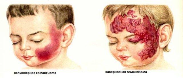 Гемангиома у новорожденных: причины возникновения и лечение