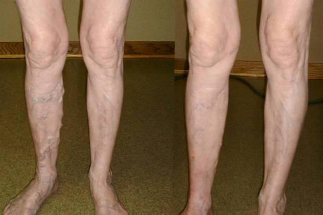 Как лечить варикоз на ногах у женщин в домашних условиях