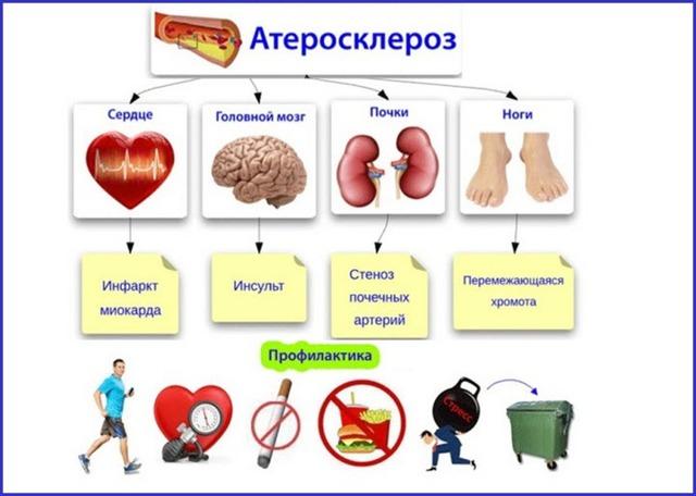 Церебральный атеросклероз: основные признаки заболевания, лечение стеноза сосудов головного мозга
