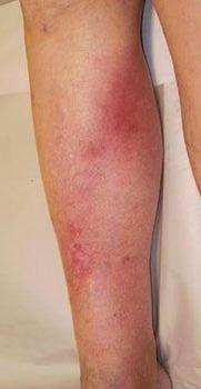 Тромбоз глубоких вен нижних конечностей: симптомы, лечение, фото