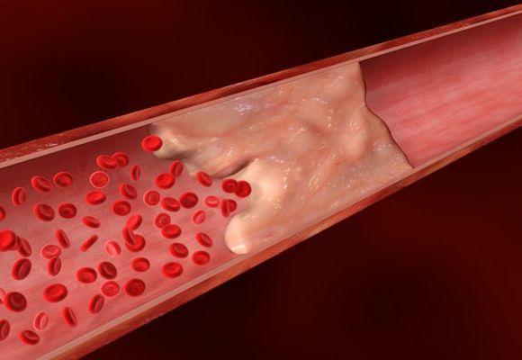 Жировая эмболия: симптомы и диагностика, способы лечения и профилактика