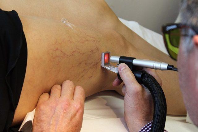 Эндовенозная лазерная коагуляция вен нижних конечностей: что это такое, фото до и после, отзывы