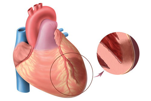 Синдром Дресслера (постинфарктный синдром): симптомы, причины, диагностика, лечение