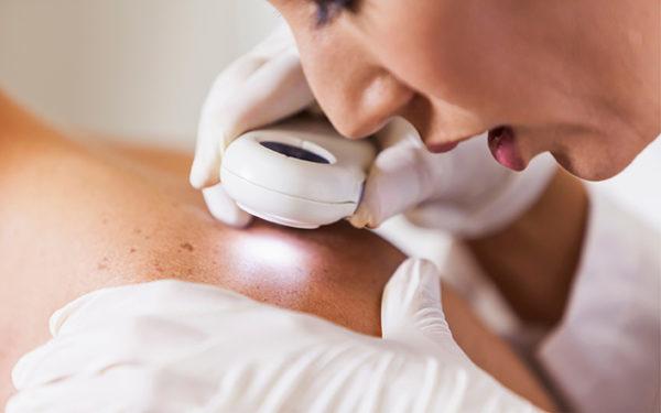 Гемангиома на коже у взрослых и детей: причины