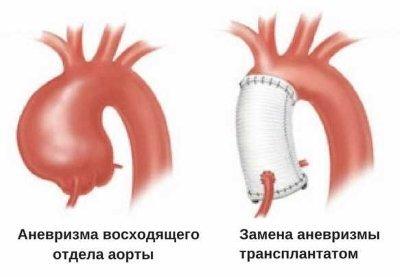 Аневризма восходящего отдела аорты: причина возникновения аневризм, ложный и истинный тип, лечение заболевания