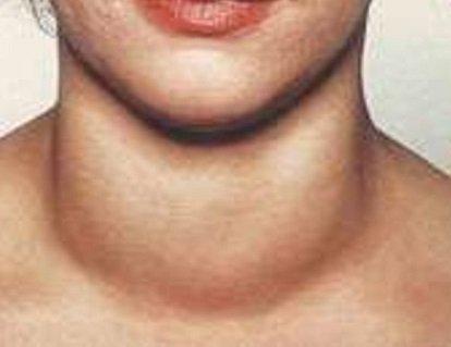 Тиреоглобулин: норма, причины повышения и понижения у женщин, проведение анализа