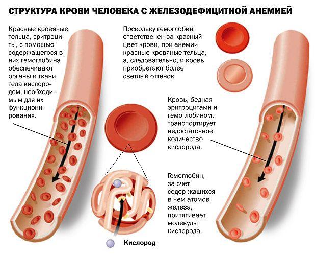 Почему падает гемоглобин в крови у женщин: признаки пониженного гемоглобина, как поднять