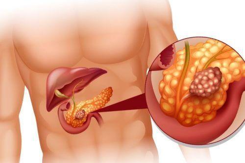 Повышенная амилаза в крови у женщин и мужчин: что значит, причины и лечение, норма, последствия