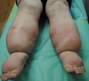 Лимфостаз нижних конечностей: лечение, симптомы, причины, народные средства