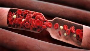 Продукты, разжижающие кровь и препятствующие образованию тромбов: таблица, список самых эффективных