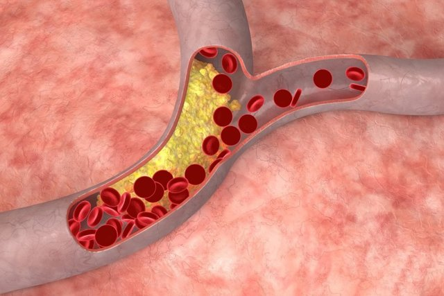 Таблица норм холестерина у женщин по возрасту: допустимые показатели