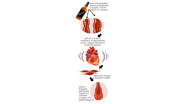 Можно ли пить алкоголь при варикозном расширение вен на ногах