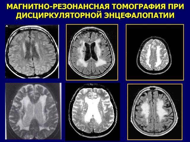 Лейкоэнцефалопатия головного мозга: что это такое, сколько живут