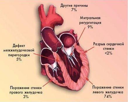 Миокардит сердца: что это, симптомы и лечение у взрослых и детей