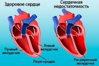 Острая и хроническая сердечная недостаточность: симптомы, диагностика и лечение