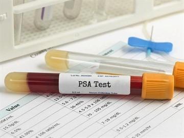 Анализ крови на пса: подготовка к сдаче что можно кушать а что нельзя таблица