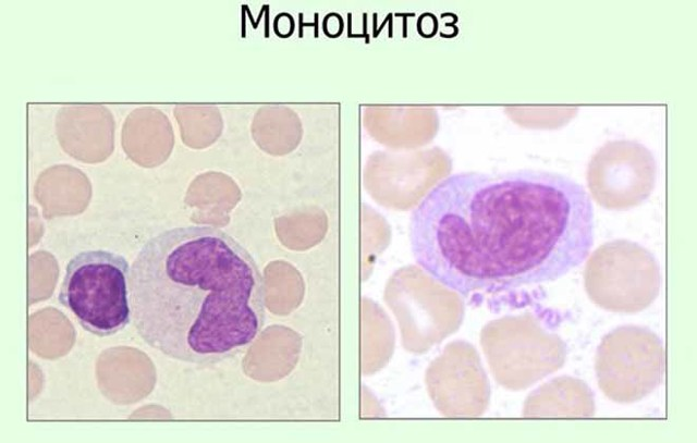 Моноциты: какие функции выполняют, за что отвечают, содержание в крови у взрослого, причины моноцитоза