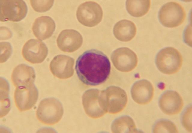 Базофилы у ребенка повышены: причины повышения, что это значит, нормы анализа крови, лечение