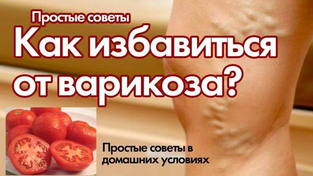 Как и чем лечить варикоз в домашних условиях: эффективные способы и средства