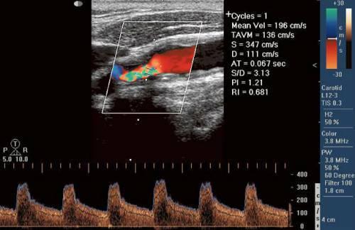 Брахиоцефальные артерии: что это такое, где находятся, дуплексное сканирование, норма