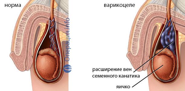 Операция Иваниссевича при варикоцеле: что это такое, техника проведения, послеоперационный период, отзывы